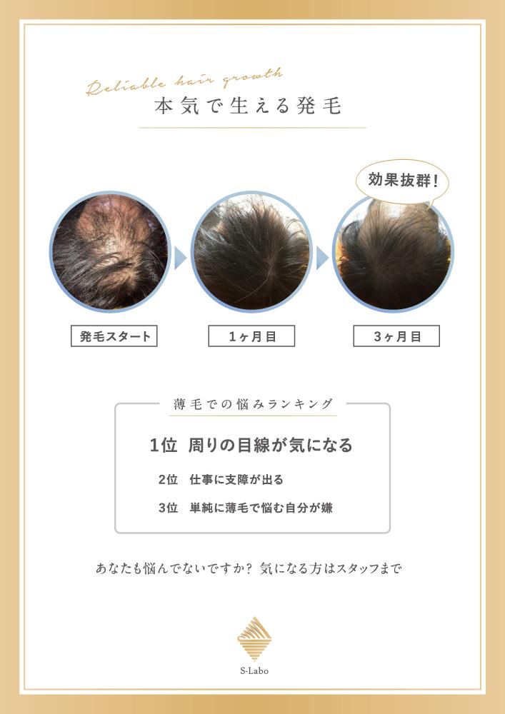 「発毛ポスター×篠丸接骨院」:デザインサンプル(コピーマック)